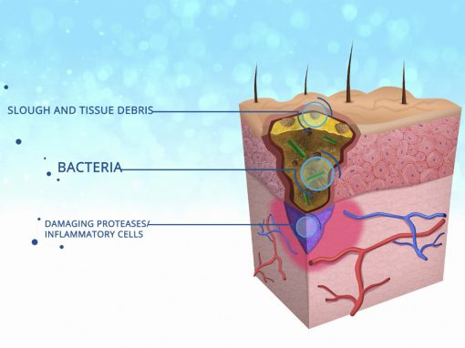 Hydroclean – Animação médica 2D